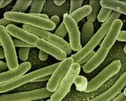 koli_bacteria_escherichia_coli_bacteria